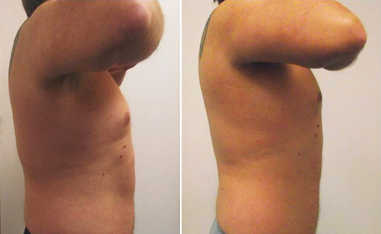 UltraSlim® before and after photo